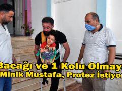 2 Bacağı ve 1 Kolu Olmayan Minik Mustafa, Protez İstiyor