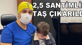 2,5 SANTİMLİK TAŞ ÇIKARILDI!